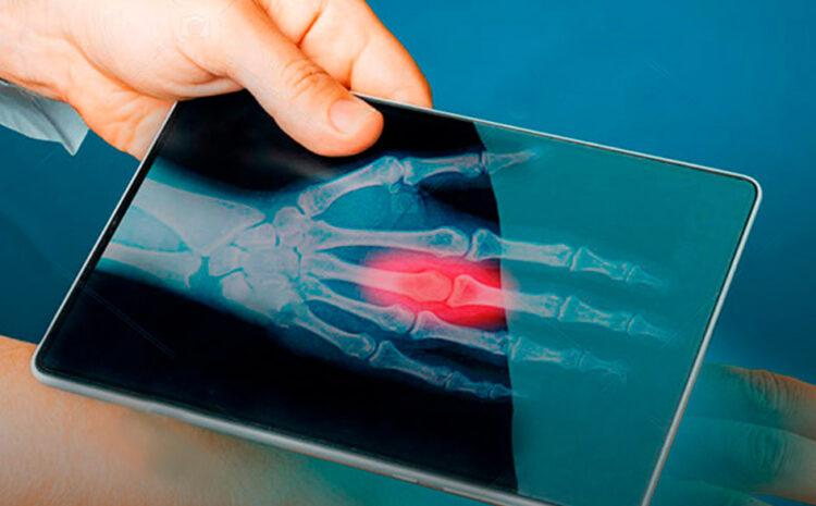 El potencial mercado peruano de los Dispositivos Médicos